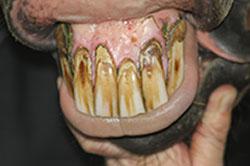 Zahnstein, Zahnfleischentzündung