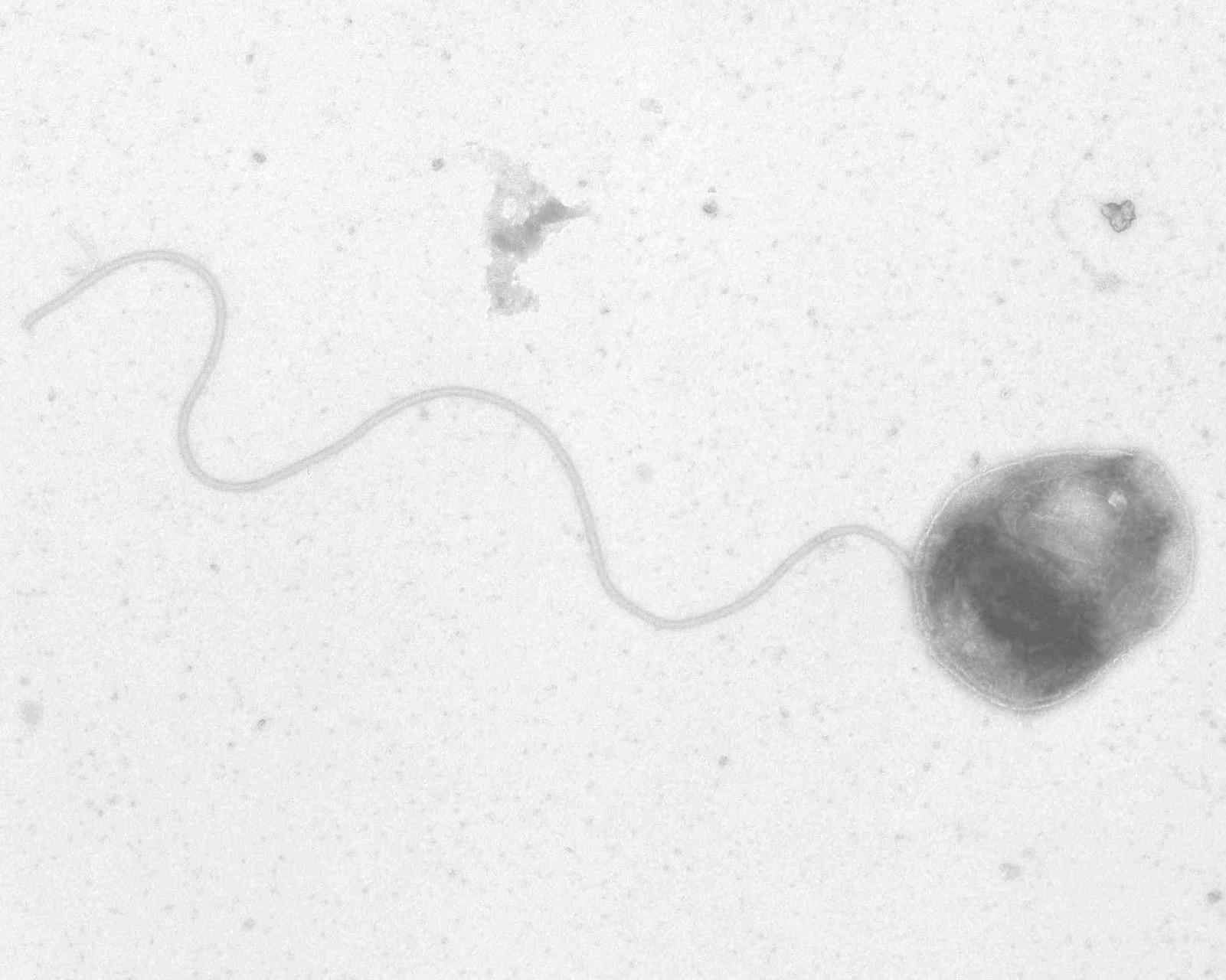石油を作る細菌の外見(鞭毛があるので泳ぐようですね)