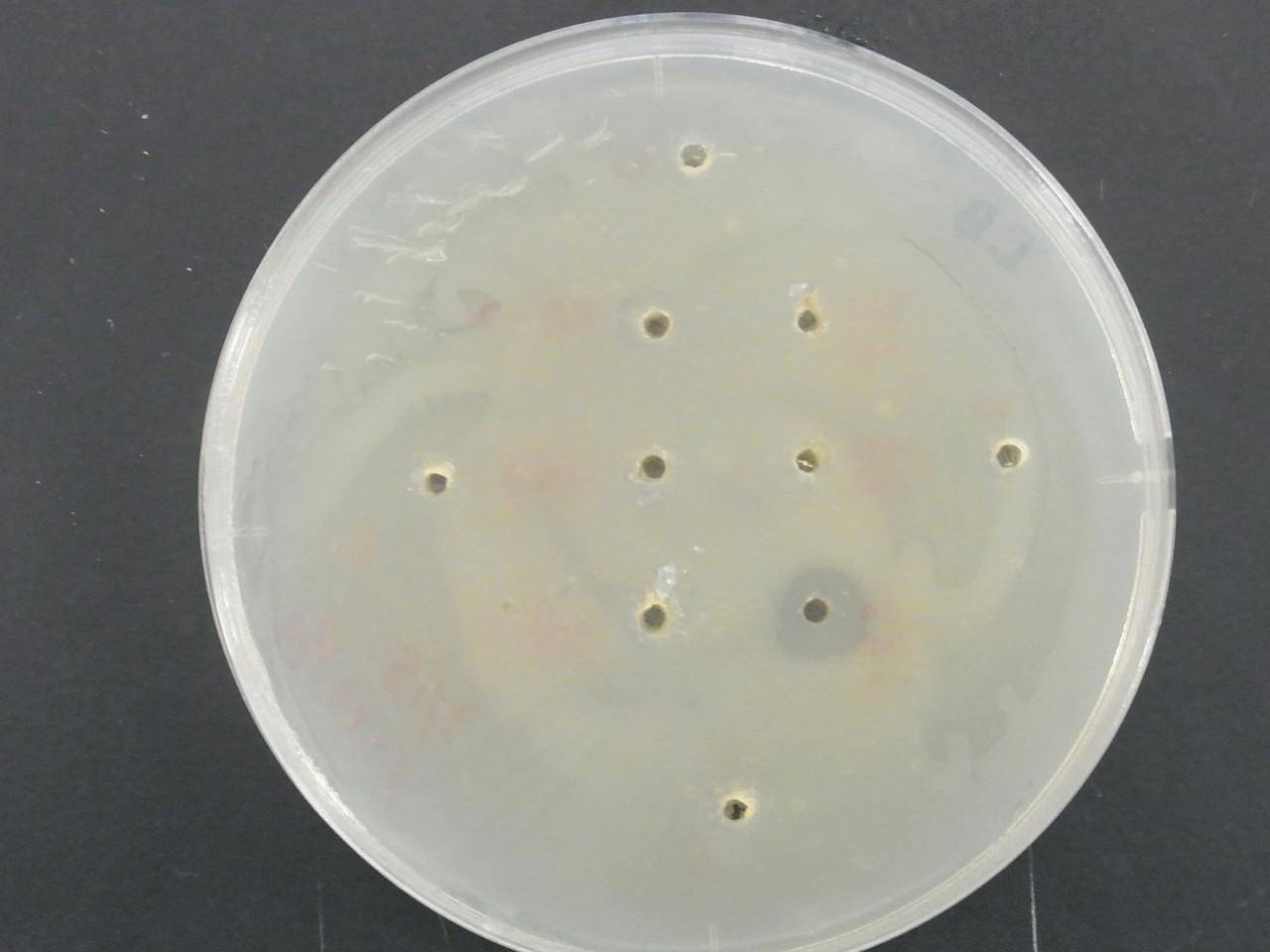 阻止円(周りに菌が生えていないことを示す透明な領域)の形成と抗生物質の検出(右下)