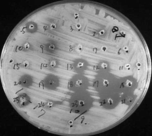 世界的に脅威な多剤耐性菌の生育を阻止できる新規細菌の獲得!