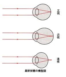 眼の屈折状態