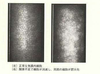 角膜内皮細胞