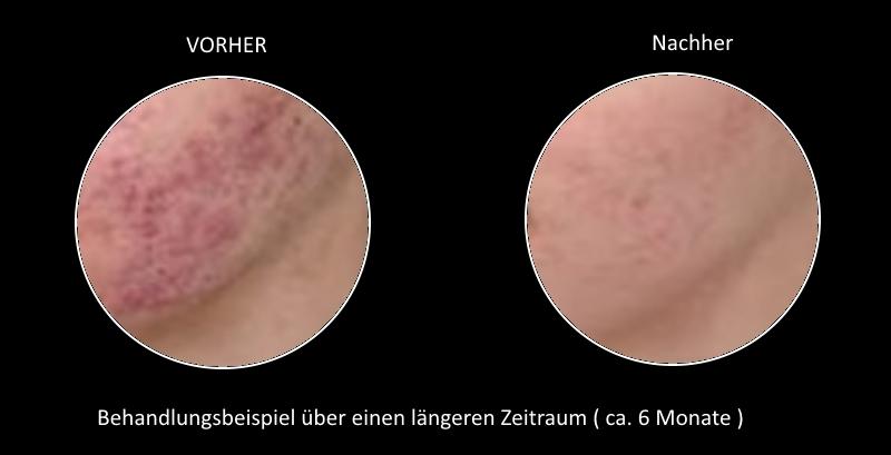 Vorher und Nachher  - Behandlungsbeispiel