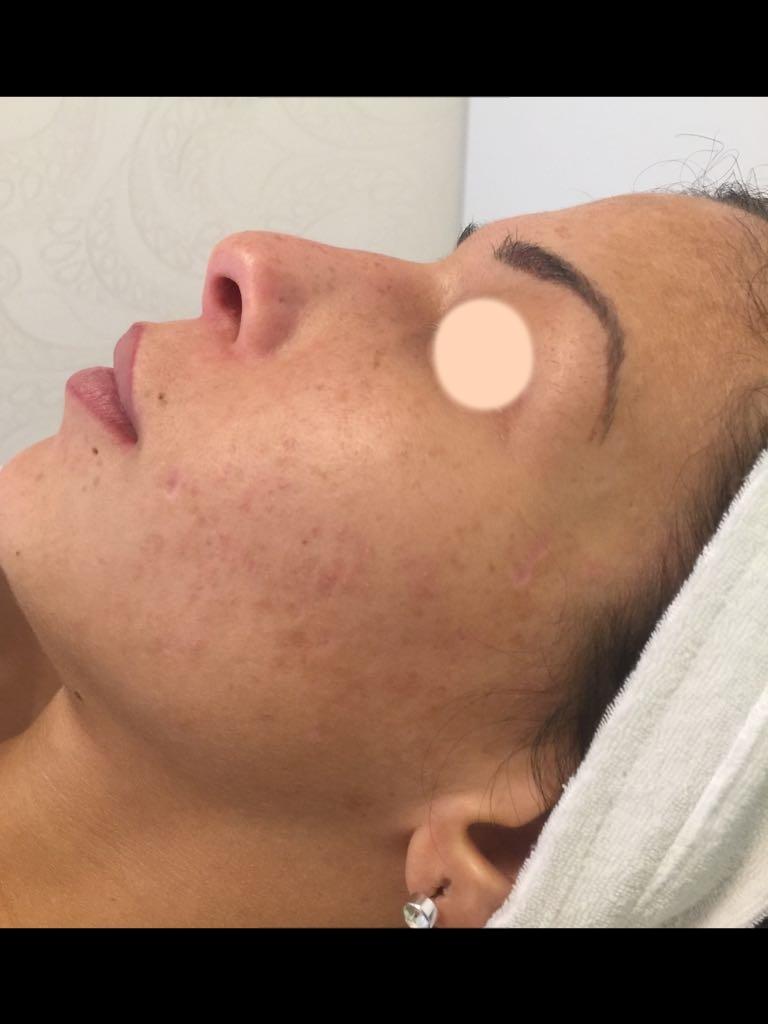 Glättung von Aknenarben