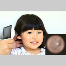 デジタル鼓膜スコープ 鼓膜の写真 大阪府 堺市 耳鼻科 耳鼻咽喉科 しまだ耳鼻咽喉科 しまだ耳鼻科 島田 純