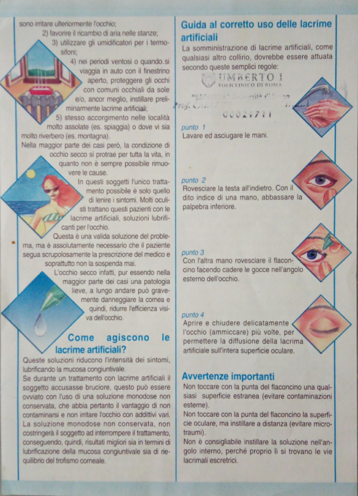 La Classificazione dell'occhio secco contempla due tipi principali  di occhio secco: occhio  secco da riduzione della produzione lacrimale ed occhio secco da aumentata evaporazione lacrimale. Il primo si riferisce ad una insufficiente secrezione lacrimale, dovuta alla distruzione o alla disfunzione delle ghiandole lacrimali; il secondo è dovuto ad un aumentata velocità di evaporazione del film lacrimale secondaria a una disfunzione delle ghiandole di Meibomio detta MGD. La MGD è un disordine della superficie oculare molto diffuso nella popolazione, la sua prevalenza aumenta con l'età. La MGD è considerata la causa principale dell' occhio secco evaporativo. Le ghiandole di Meibomio sono ghiandole sebacee modificate ,non annesse al pelo olocrine, situate in fila unica, nel contesto dei tarsi palpebrali. Tali ghiandole sintetizzano il mebo, un secreto di natura lipidica che compone lo strato superficiale del film lacrimale.   La funzione di tale secreto è quella di prevenire l'eccessiva evaporazione del film lacrimale e di provvedere ad una adeguata lubrificazione durante l' ammiccamento, rendendo questo meccanismo il meno traumatico possibile per la superficie oculare. La MGD è una diffusa e cronica anormalita' delle cosiddette ghiandole, comunemente caratterizzata dall'ostruzione dei dotti terminali e/o da variazioni qualitative/quantitative del secreto ghiandolare. Questo può causare alterazioni del film lacrimale, sintomi da irritazione oculare, infiammazione clinicamente evidente e patologia della superficie oculare. L'irritazione cronica delle  ghiandole di Meibomio da parte delle lenti a contatto, può essere la causa principale di una MGD, con  riduzione del volume e modifica della forma, con una retrazione od accorciamento della ghiandola, più corta dal lato distale (drop out).