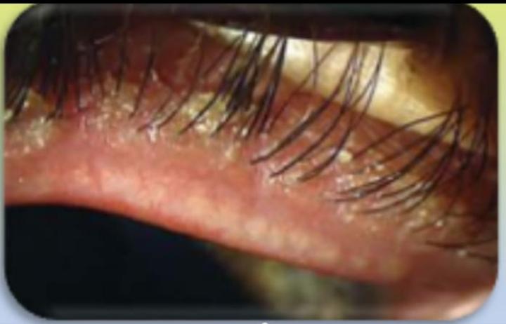 COLLARETTI in Blefarite Stafilococcica