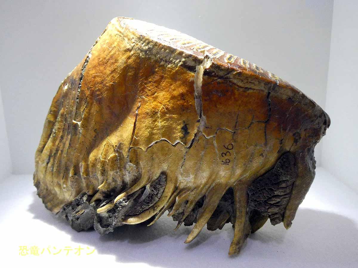 上顎左第3大臼歯