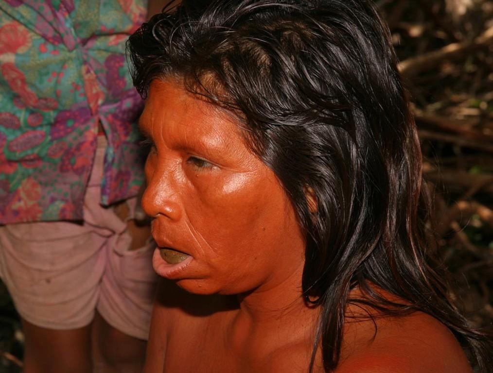 Sehr viele Yanomami haben einen Wulst Kautabak unter der Zunge liegen.