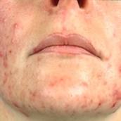 Wer rechtzeitig mit der richtigen Pflege beginnt, hat seine Akne sehr gut im Griff