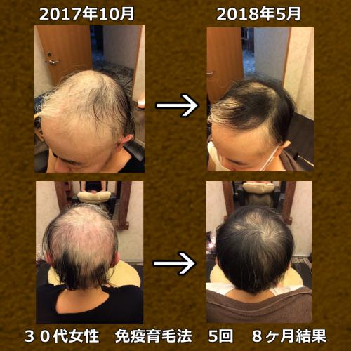 7年間、脱毛症に悩まれていた30代女性 5回8ヶ月の育毛実績写真です。