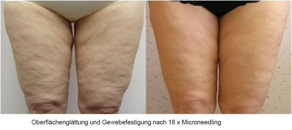 SKIN NEEDLING / COLLAGEN INDUCTION THERAPY (CIT) / SKIN ...