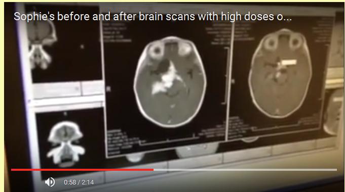 scans avant et apres traitement avec du cannabis