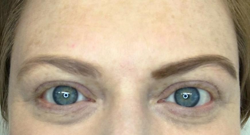 Rechts die definierte Augenbraue