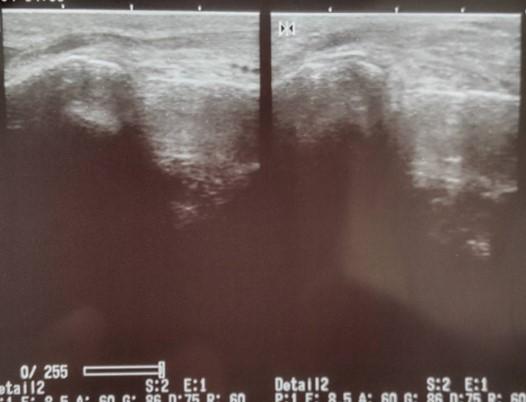 踵骨剥離骨折のエコー画像