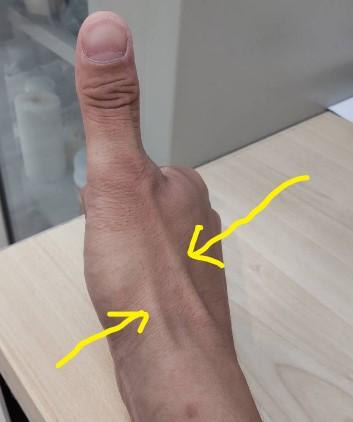 産後の腱鞘炎の説明写真