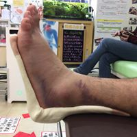足首のねんざの画像