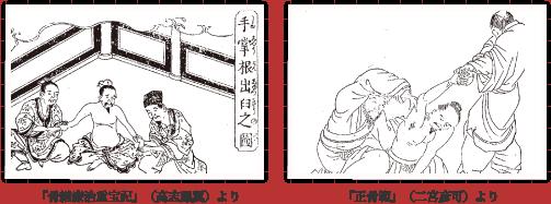 柔道整復術の歴史