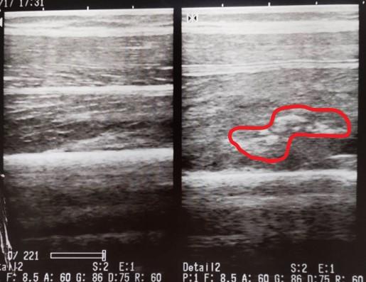 大腿部 骨化性筋炎の症例