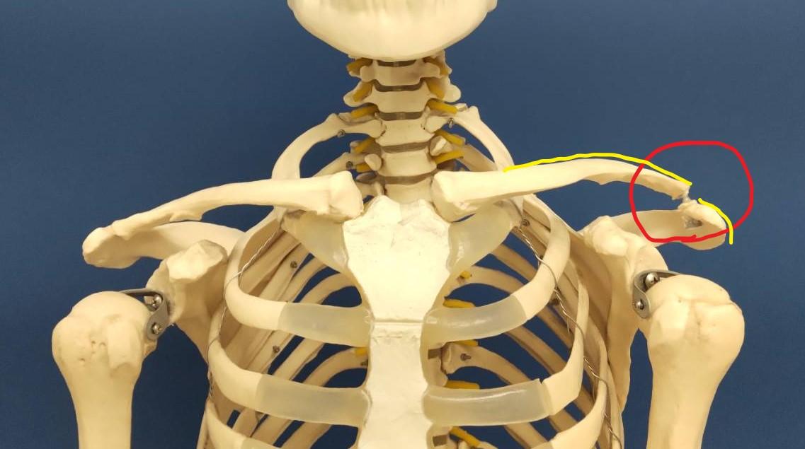 肩鎖関節脱臼(Ⅲ度)の症例