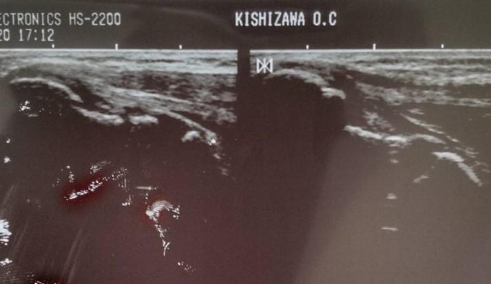 右肘 内側上顆 剥離骨折の症例
