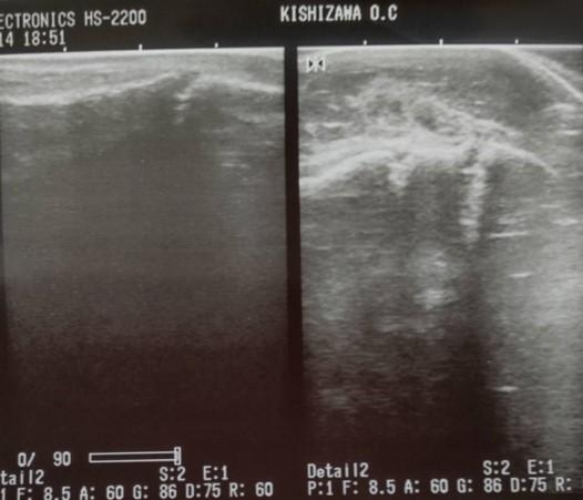 外果(外くるぶし)骨折の症例