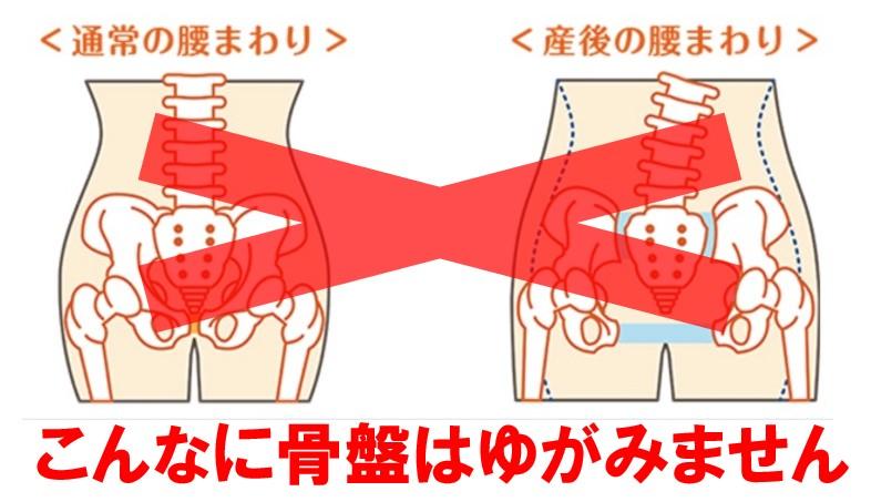 産後の骨盤矯正は、ベッドの上だけで完結出来るか?