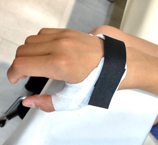 中手骨骨折疑いの症例(重症な突き指)