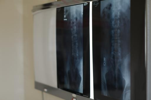 医学的に「産後の骨盤矯正」を考える