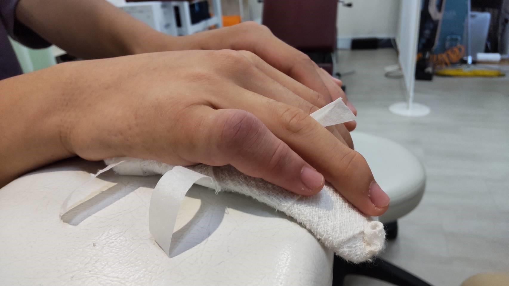 右第五指基節骨骨折・PIP関節脱臼の症例