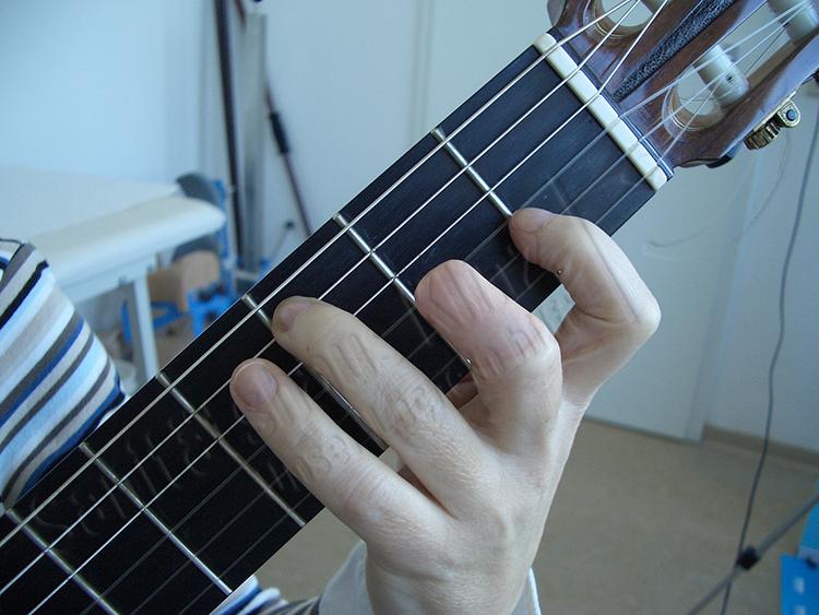 Mittelfingerprothese Fingerprothese Silikonprothese Silikon Prothese kosmetischer Ausgleich funktioneller Ausgleich Gitarre Amputation Unfall Sanitätshaus Klinz Bernburg