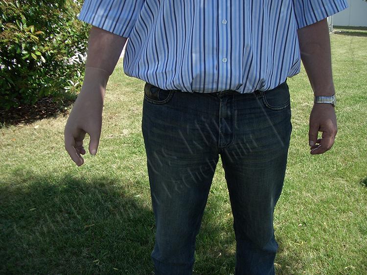 Handprothese Teilhandprothese Silikonprothese Silikon Prothese kosmetischer Ausgleich funktioneller Ausgleich Kinder Amputation Unfall Verbrennung Sanitätshaus Klinz Bernburg