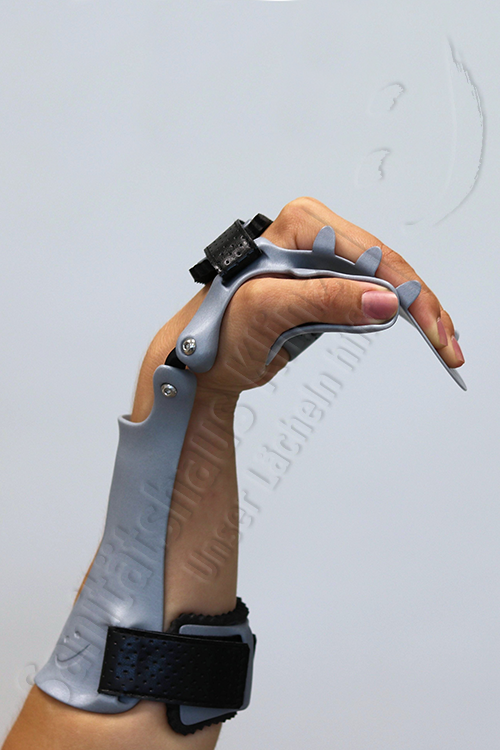 Armorthese Handorthese Lagerungsorthese dynamisch Orthese 3D-Druck atmungsaktiv WHO HO Schlaganfall Apoplex Parese Sanitätshaus Klinz Bernburg