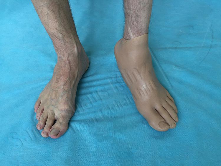 Fußprothese Vorfußprothese Silikonprothese Silikon Prothese kosmetischer Ausgleich funktioneller Ausgleich Amputation Unfall Sanitätshaus Klinz Bernburg