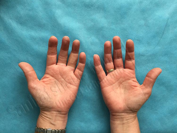 Ringfingerprothese Mittelfingerprothese Fingerprothese Silikonprothese Silikon Prothese kosmetischer Ausgleich Amputation Unfall Sanitätshaus Klinz Bernburg