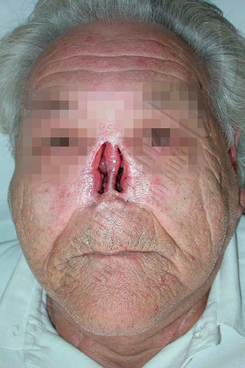 Nasenprothese Hautkleber Silikonprothese Silikon Nase Prothese Epithese kosmetischer Ausgleich Amputation Unfall Sanitätshaus Klinz Bernburg