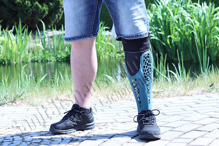 Unterschenkelprothese Beinprothese Prothese 3D-Druck Kosmetik kosmetischer Ausgleich Amputation Unfall Sanitätshaus Klinz Bernburg