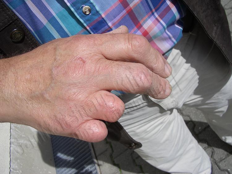 Ringfingerprothese Fingerprothese Silikonprothese Silikon Prothese kosmetischer Ausgleich Amputation Unfall Sanitätshaus Klinz Bernburg