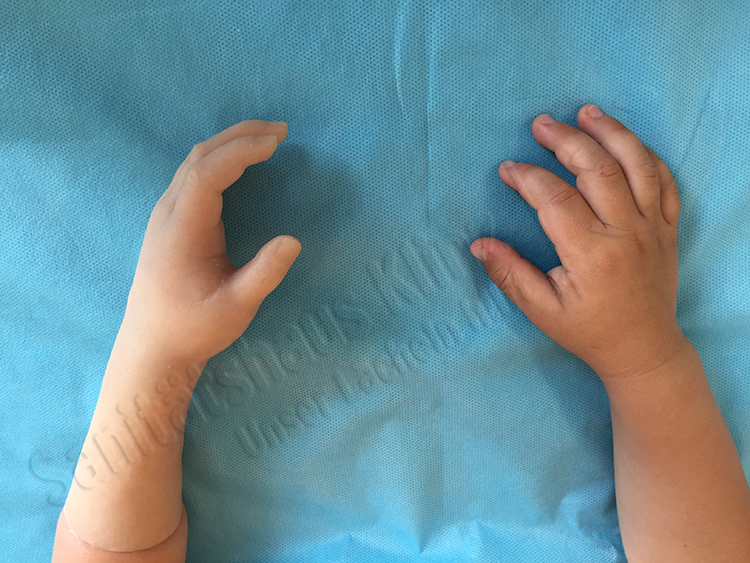 Handprothese Teilhandprothese Silikonprothese Silikon Prothese kosmetischer Ausgleich funktioneller Ausgleich Kinder Dysmelie Fehlbildung Sanitätshaus Klinz Bernburg