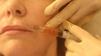 PRP zur Faltenbehandlung bzw. Verbesserung des Hautbildes