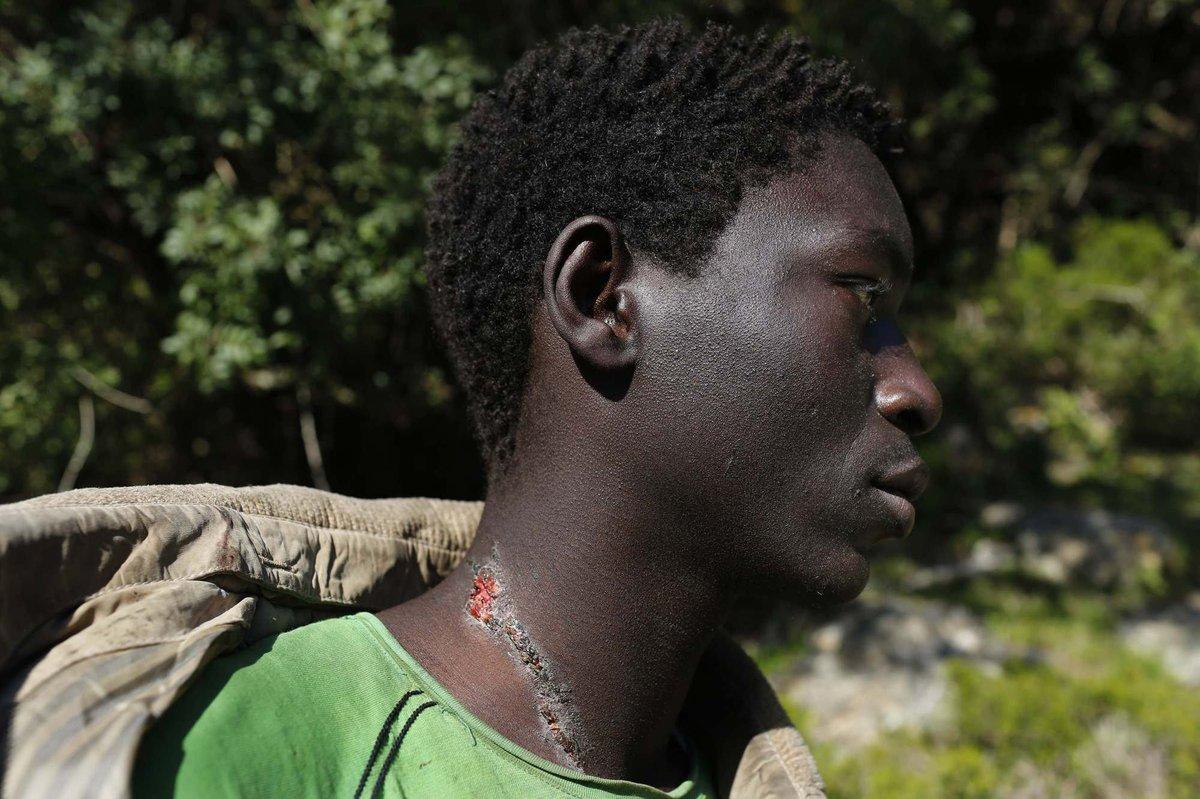 Mustapha, de Gambia, afirma que sus heridas fueron infligidas por la policía marroquí en su escondite en las montañas ceutíes (2014). Juan Medina/Reuters