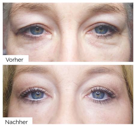 Oberlidstraffung Vorher/Nachher, Hautstraffung, Kosmetik in Moraira