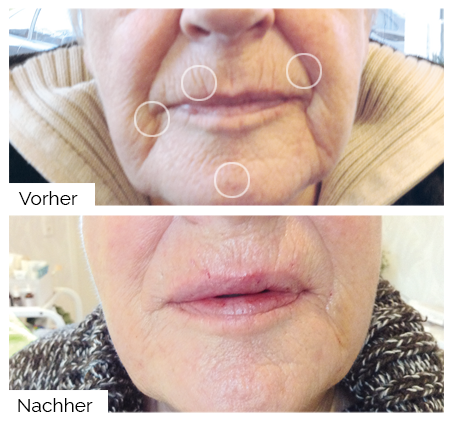 Soft-Face-Lifting mit dem A|C|C|O|R® Plasma-Pen