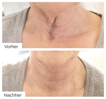 Halsbehandlung mit dem A|C|C|O|R® Plasma-Pen