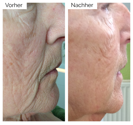 Seiten-/Halsstraffung mit dem A|C|C|O|R® Cosmetic Corrector