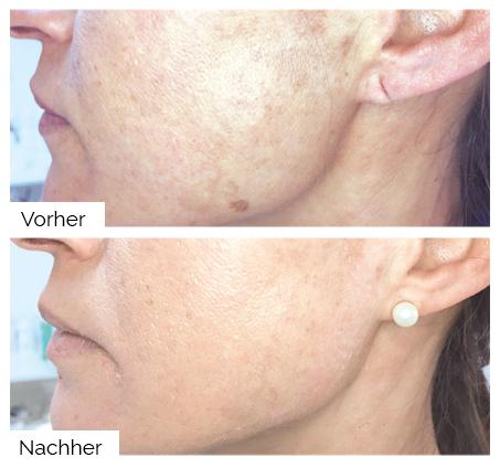 Pigmentflecken entfernen mit dem A|C|C|O|R® Cosmetic Corrector