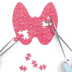 Schilddrüsen Operation