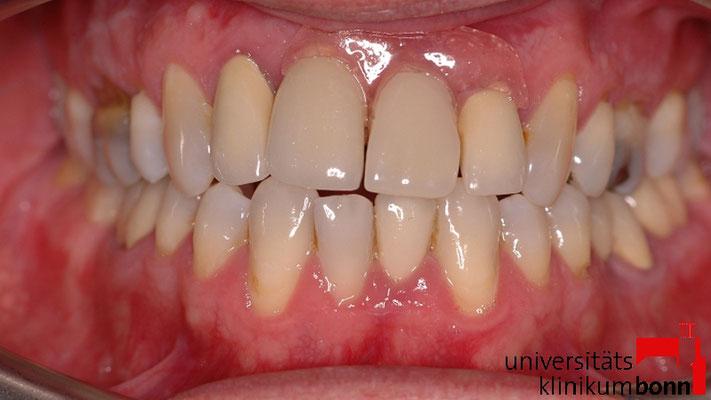 Valplast®-Prothese
