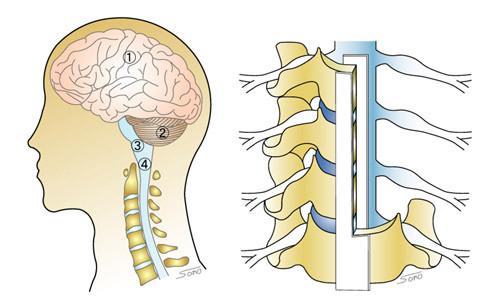 頚椎の断面