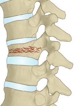 胸椎圧迫骨折